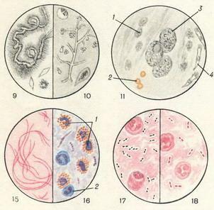 Микроскопия мокроты гельминты