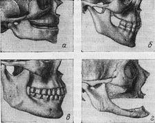 возрастные изменения челюстей