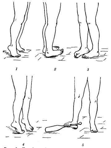 Лечение профилактика и восстановление хрящей суставов