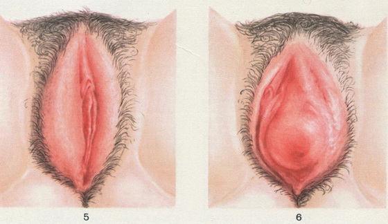 Боль в животе и пояснице розовые выделения при беременности