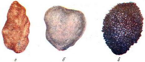 камни в почках виды камней фото